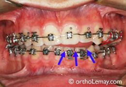 Pression de langue et béance pendant l'orthodontie