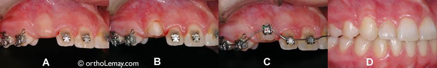 (A) canine recouverte de gencive. (B) Canine dégagée à l'aide du laser. (C) Attache posée sur la dent immédiatement après l'avoir dégagée (D) À la fin du traitement, la canine est place et la gencive autour de la dent montre un aspect normal.