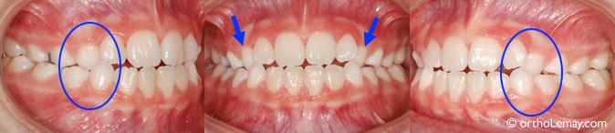 Occlusion croisée dentaire des canines supérieures