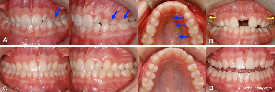 Expansion palatine rapide et correction de malocclusion orthodontie Sherbrooke