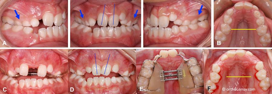 Expansion maxillaire rapide en orthodontie et largeur du palais améliorée