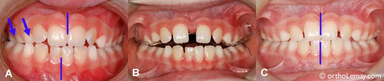 Expansion palatine rapide pour corriger une occlusion croisée en orthodontie