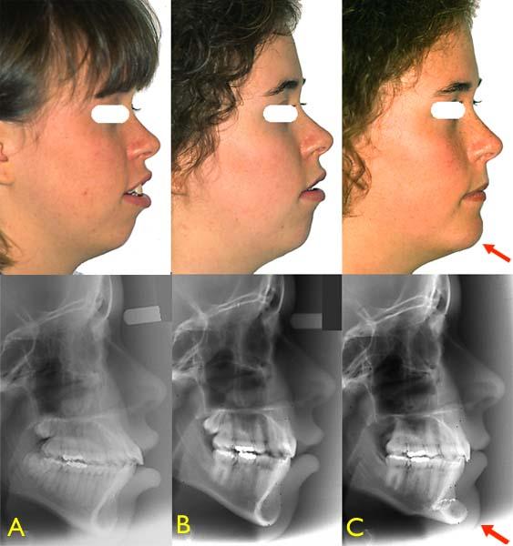 En plus de l'orthodontie ayant corrigé la position des dents, une chirurgie d'avancement du menton (génioplastie) a permis de changer le profil de cette adolescente de 18 ans. Photos : Avant l'orthodontie (A), après l'orthodontie (B) et après la génioplastie (C) - (Courtoisie : Dr Sylvain Chamberland, Québec)
