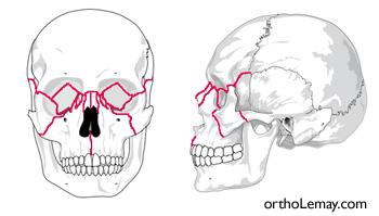 Plusieurs sutures du visage peuvent être affectées par l'expansion