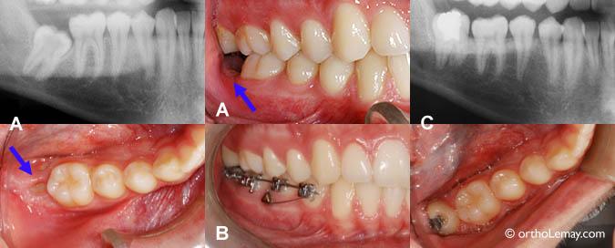 (A) avant le traitement. (B) Un mini-implant d'ancrage et quelques boîtiers ont permis de corriger cette dent en ± 6 mois. (C) Le léger espace entre les molaires se refermera en quelques semaines. À cause de la carie, une obturation a été faite par le dentiste et l'excès de gencive devra être enlevé.