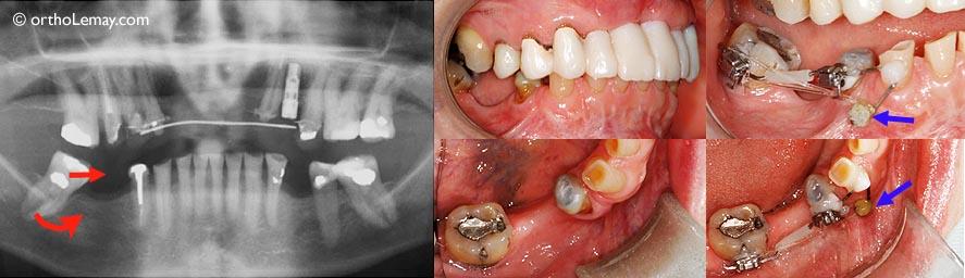 (A, B) Condition avant le redressement de la molaire. (C) Mini-vis (recouverte de colle pour retenir un fil), quelques boîtiers et un élastique sont tout ce qui sera nécessaire pour redresser la molaire.