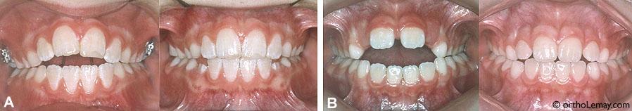 (A) Utilisation d'un écran oral pour bloquer la langue. Après 6 mois, l'espace antérieur a diminué de façon siginficative. (B) Béance antérieure importante due à une habitude de suçage de pouce et un positionnement de la langue entre les dents. Après le port d'un écran oral pendant 10 mois, ces habitudes sont arrêtées et la béance a diminuée.