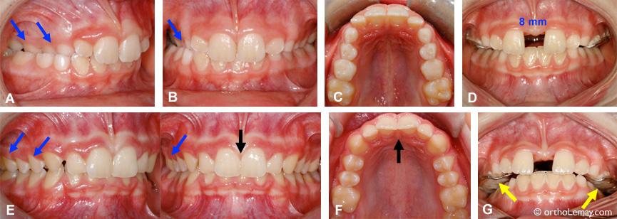 Ouverture d'un espace pendant l'expansion rapide maxillaire en orthodontie