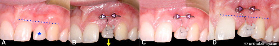 Éruption forcée ou égression dentaire en orthodontie d'une dent fracturée