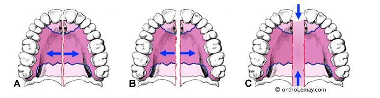L'ouverture de la suture maxillaire pendant l'expansion rapide
