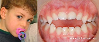 Suce (pacifier) causant une malocclusion dentaire; béance antérieure
