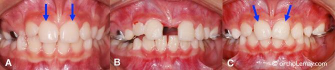 Déplacement des dents lors de la récidive de l'expansion maxillaire