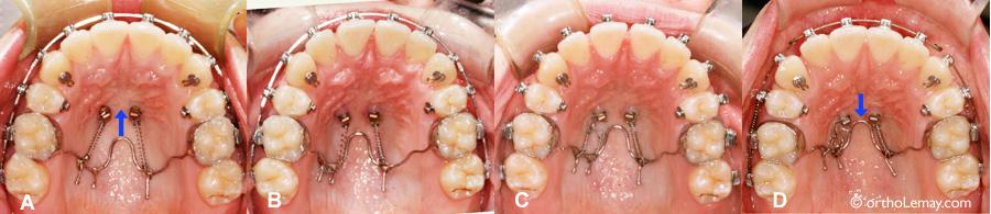 Appareil orthodontique de traction maxillaire utilisé avec des mini-vis d'ancrage