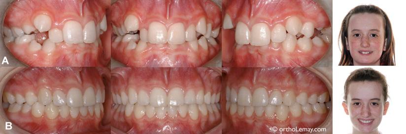 Traitement orthodontique de cehvauchement dentaire sans extractions