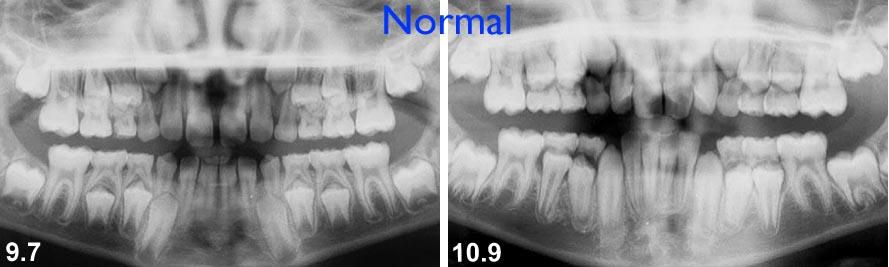 Ces radiographies de jeune patients de 9 et 10 ans démontrent un patron d'éruption relativement normal. La direction d'éruption et la formation des dents permanentes est acceptable et aucune intervention n'est indiquée à ce moment. Seule une radiographie peut confirmer que le développement dentaire et la position des dents sont normaux ou problématiques.