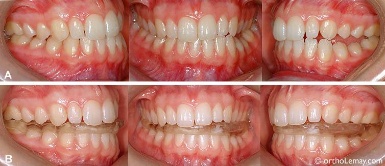 """(A) Occlusion initiale : semble assez bonne dans l'ensemble sauf que certaines dents postérieures ne se touchent pas du côté gauche (béance postérieure). (B) Traitement : afin de tenter de soulager ses symptômes aux ATMs, une plaque articulaire fut utilisée sur la mâchoire inférieure pour soulager la musculature et """"déprogrammer"""" les articulations."""