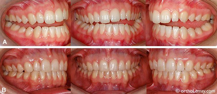 (A) Après quelques semaines de port de la plaque, la mandibule s'est replacée dans une position confortable pour la patiente (disparition de la majorité des symptômes) mais la façon de mordre (occlusion) a changée significativement; il n'y a pratiquement plus de contacts entre les dents. La plaque permet de combler l'espace entre les dents et de fonctionner confortablement.