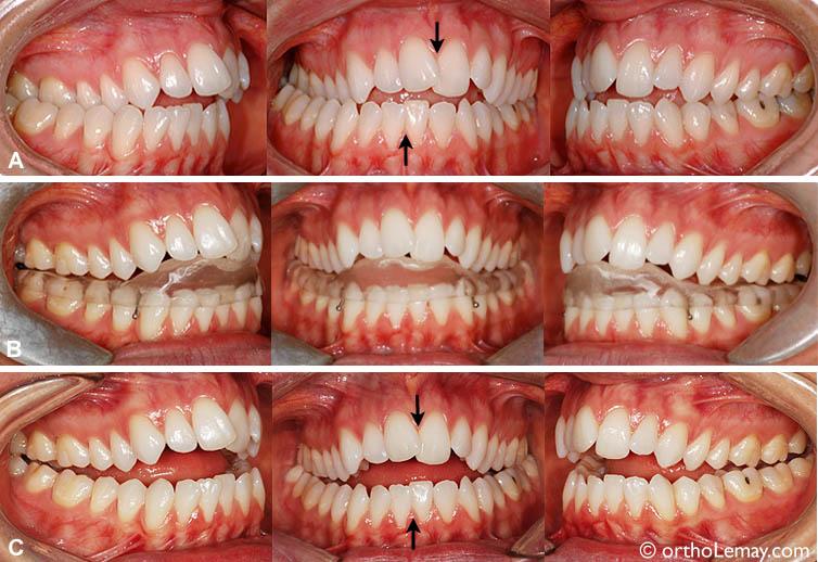 """(B) Plaque articulaire utilisée pour """"déprogrammer"""" la musculature et permettre à la mandibule de se replacer sans interférences entre les dents des arcades opposées. (C). Après 7 semaines, la mandibule a changé de position (déplacée vers le centre) ce qui révèle la malocclusion réelle. La béance antérieure a augmenté et il y a moins de contacts entre les dents des deux arcades mais les symptômes ont diminué significativement et la patiente est confortable."""