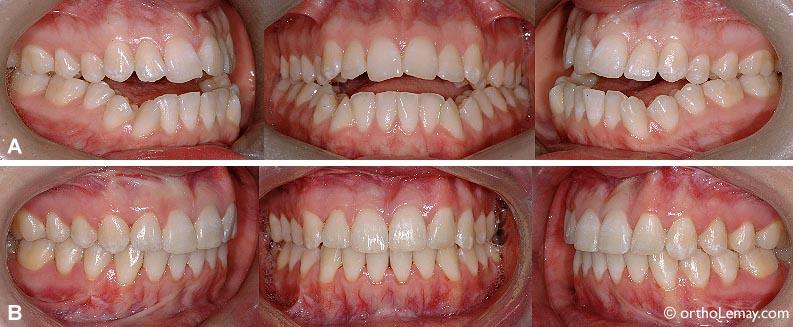 Femme de 22 ans présentant une sévère béance antérieure occasionnant un problème fonctionnel (mastication et élocution) et esthétique. (A) Avant le traitement. (B) Après l'orthodontie et une chirurgie à la mâchoire supérieure.
