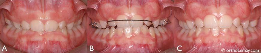 """L'utilisation d'un """"bite plane"""" (plan articulé) agissant aussi comme mainteneur d'espace a permis de dégager les dents inférieures en diminuant le surplomb vertical."""