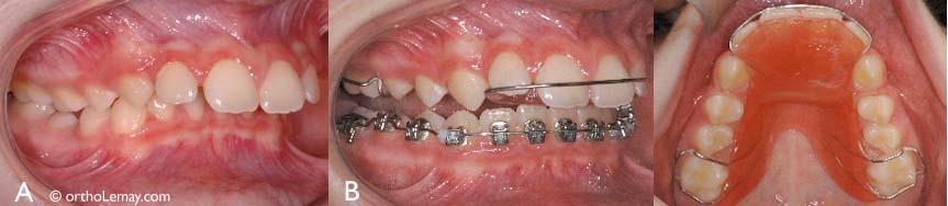 Le plan articulé (bite plane) peut aussi être utilisé pendant les corrections orthodontiques pour dégager les dents qui se surplombent trop et faciliter les corrections.