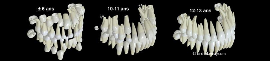 Diagramme montrant les étapes d'éruption dentaire entre 6 et 13 ans.