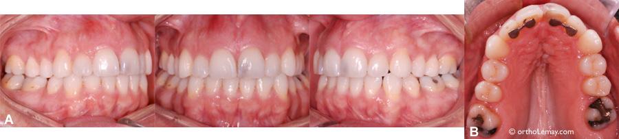 Stabilité de l'expansino maxillaire 5 ans après la fin du traitement d'orthodontie.