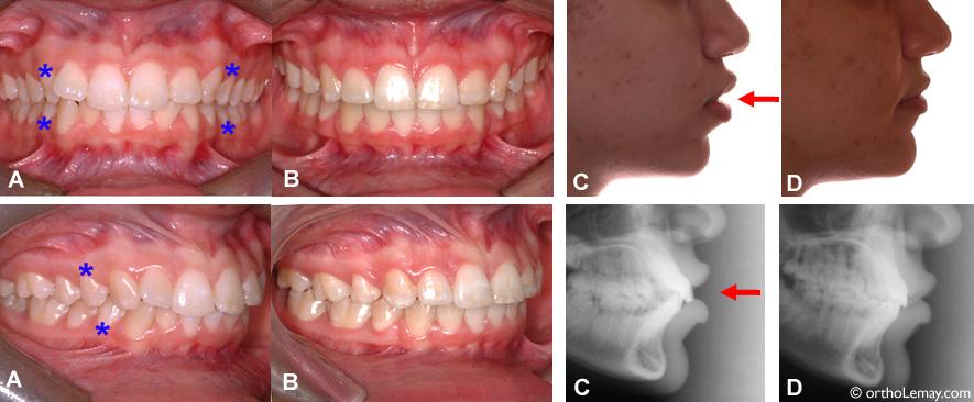 Extractions et l'influence sur le profil en orthodontie