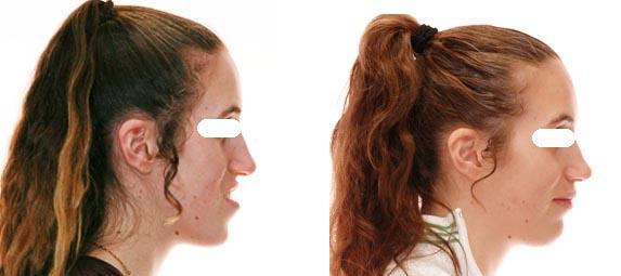 Changement dans le profil du visage suite à l'orthodontie et la chirurgie;