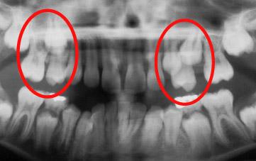 Migration de dents, perte d'espace et problèmes d'éruption de deux prémolaires supérieures qui sont complètement bloquées et qui ne peuvent pas faire éruption correctement à la suite d'une supervision inadéquate pendant le développement dentaire.