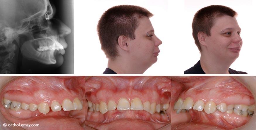 Pré-traitement : mâchoire inférieure reculée, dents inférieures complètement recouvertes