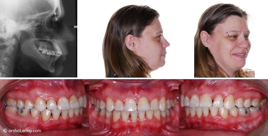 Après l'orthodontie et la chirurgie, le profil est équilibré, les dents arrivent bien ensemble et sont plus fonctionnelles.