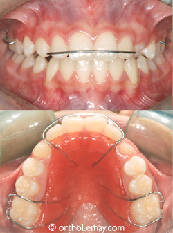 Mainteneur d'espace supérieur amovible appareil dentaire orthodontique