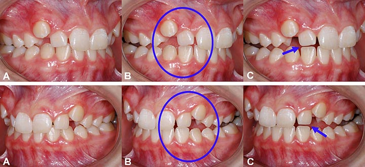 """Example of """"functional"""" wear in a 14-year-old girl;  (A) The upper canines are high and cannot play their protective role during normal jaw movements. (B) When the mandible moves to the right (above pictures) or to the left, the lateral teeth touch and start to wear out. (C) At the end of the movement, wear is visible on the tip of the lateral incisors which have already shortened."""