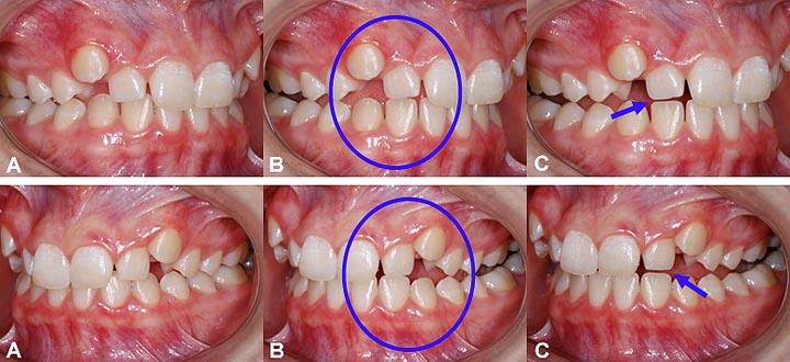 Une mauvaise occlusion et malposition des dents peuvent causer de l'usure dentaire.