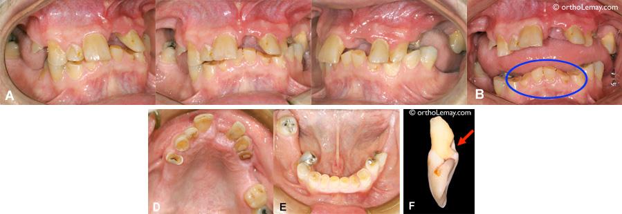 Usure dentaire sévère
