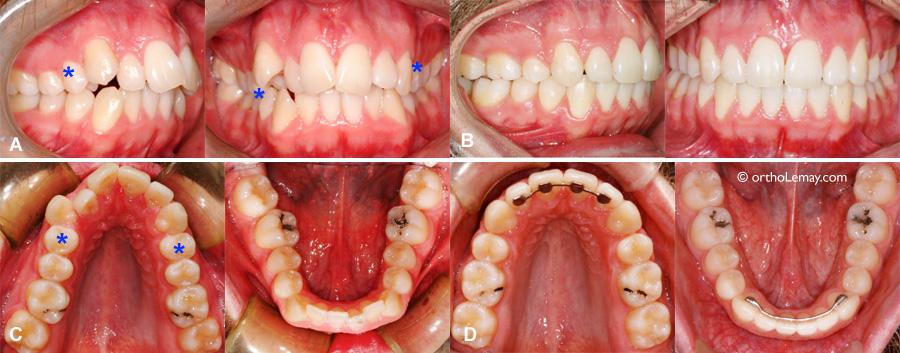 Extraction de prémolaires chez un adulte pour un traitement d'orthodontie