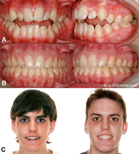 Correction d'une béance antérieure en orthodontie.