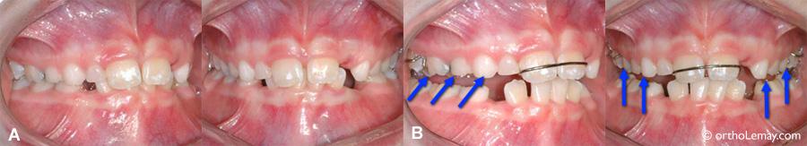 Plan articulé ou bite plane pour disclusion dentaire en orthodontie