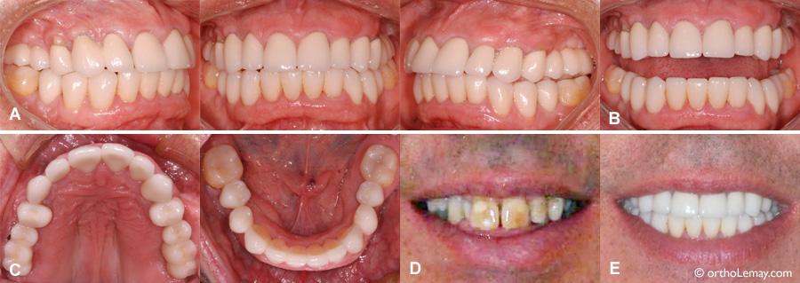 Couronnes et ponts, implants dentaires faits après un traitement d'orthodontie inter-disciplinnaires.