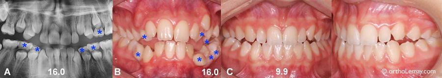 Exemples de variations importantes dans le développement et l'éruption dentaire.
