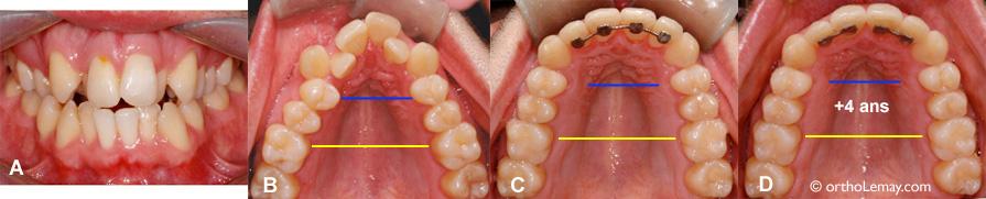 expansion maxillaire orthodontique et excellente stabilité après 4 ans