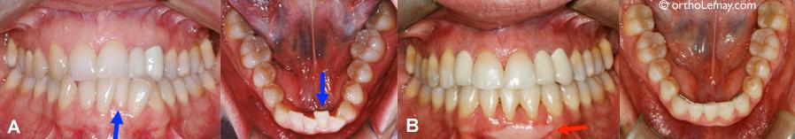 Extraction d'une incisive pour traitement d'orthodontie