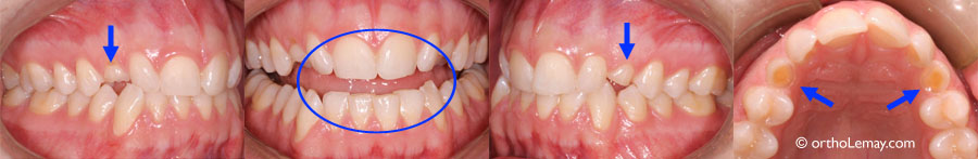 Tooth wear and impacted canines orthodontics