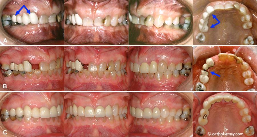 Cas multidisciplinaire adulte traité en orthodontie