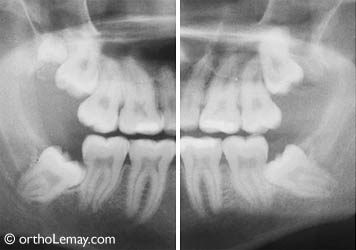 Impacted upper and lower third molars leaning against the second molars in a 21-year-old male.
