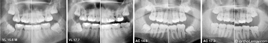 Wisdom teeth orthodontist Lemay VL AC