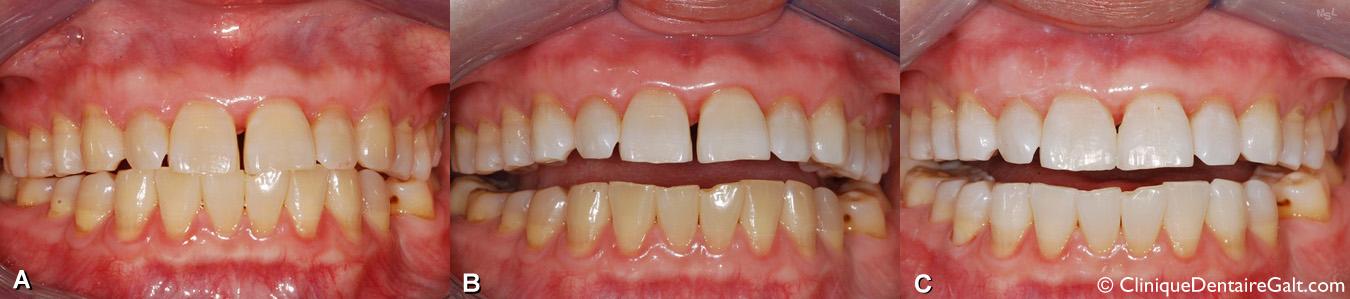Blanchiment dentaire avec coquilles de blanchiment fabriquées par le dentiste