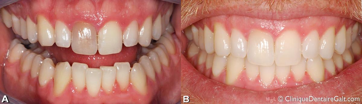 Exemple d'un blanchiment dentaire intra coronal fait par un dentiste pour une seule dent qui était décolorée