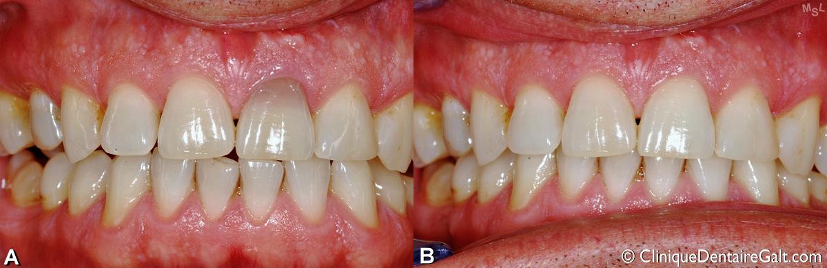 Autre exemple de blanchiment dentaire intracoronal pour une incisive supérieure décolorée